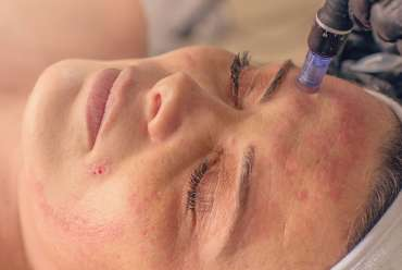 Microneedling Treatments in Las Vegas, NV