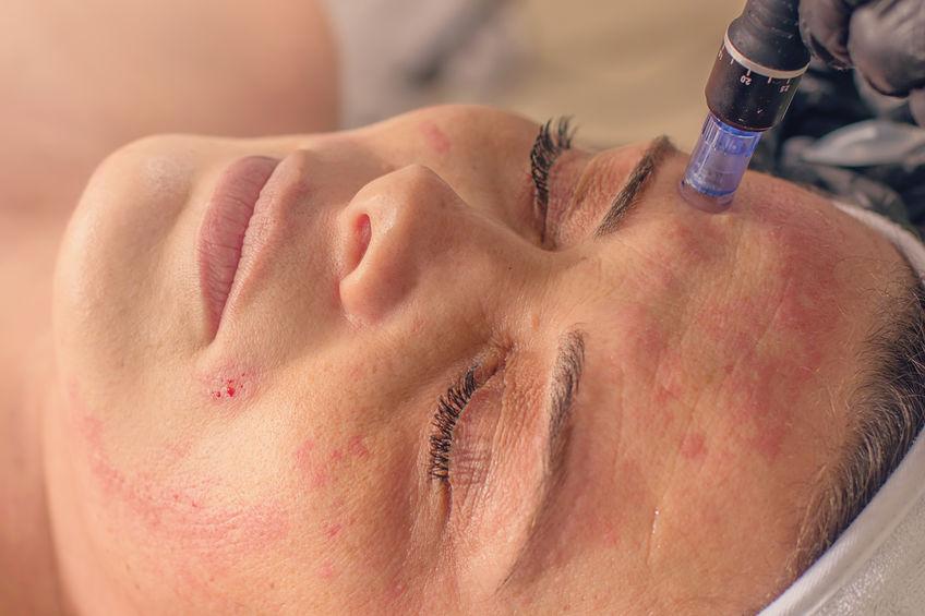 Microneedling Treatments in Las Vegas, NV