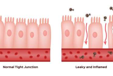 Leaky Gut Explained
