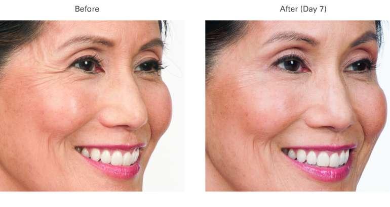 Botox Treatments in Las Vegas, Nevada