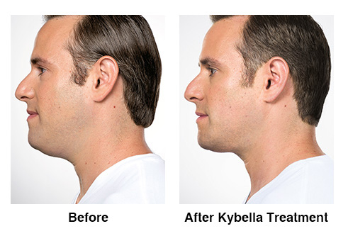 Kybella for the Treatment of Double Chin – Clinical Trial Results